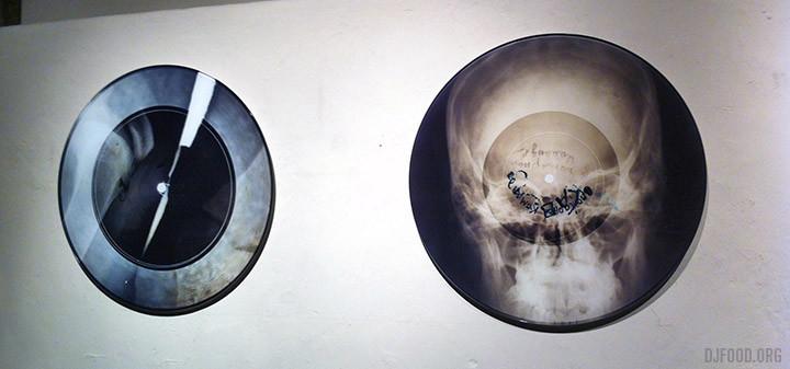 X-Ray Audio2