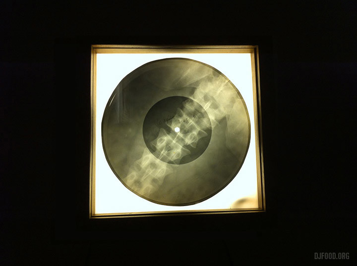X-Ray Audio3