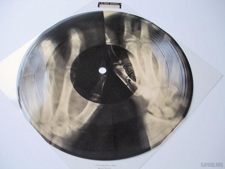 X-Ray AudioBookFlexi