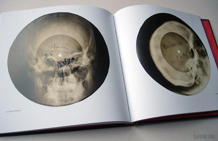 X-Ray AudioBookinside3
