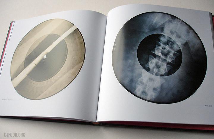 X-Ray AudioBookinside6